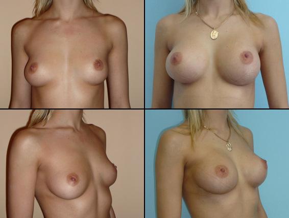 Laugmentation de la poitrine 3 semaine