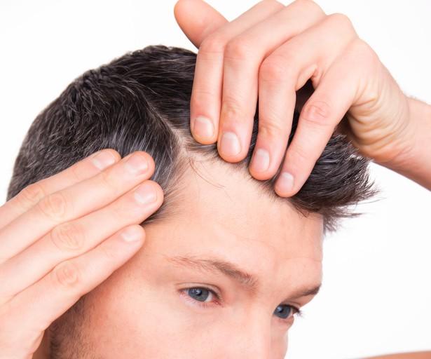 Que peindre les cheveux à leur chute des cheveux intense